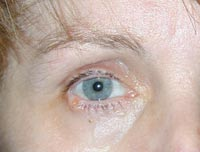 Right Lower Eyelid Basal Cell Cancer Removal And Reconstruction
